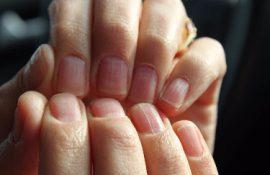 Полосы на ногтях рук причины
