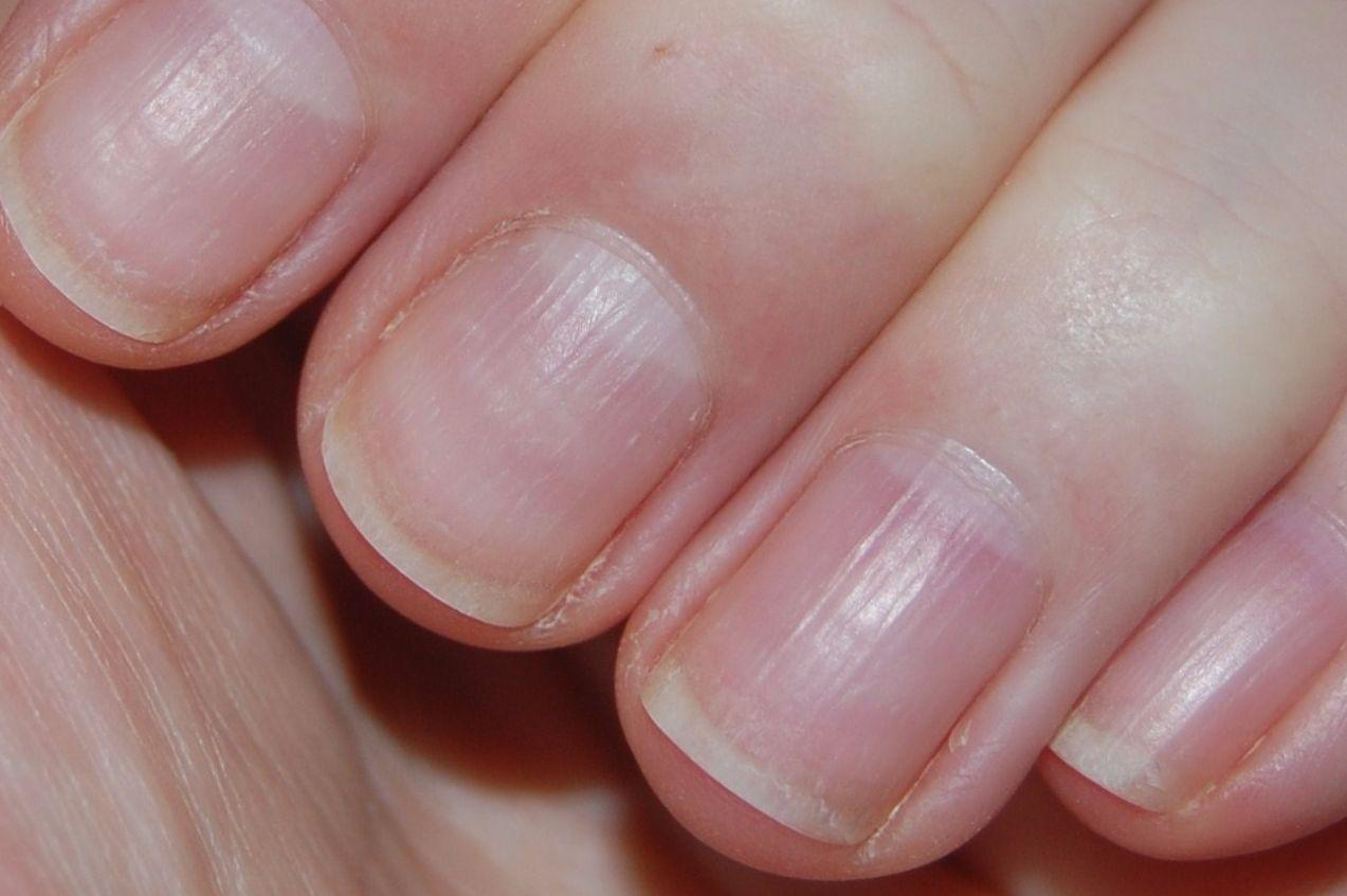 Высокий трубковидный ногти фото
