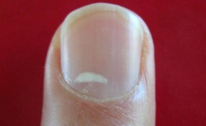 Белые пятна на ногтях