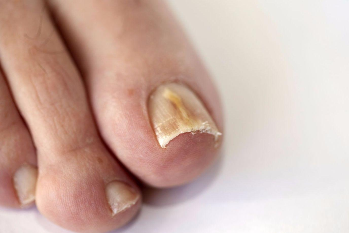 Можно красить ногти на ногах если грибок