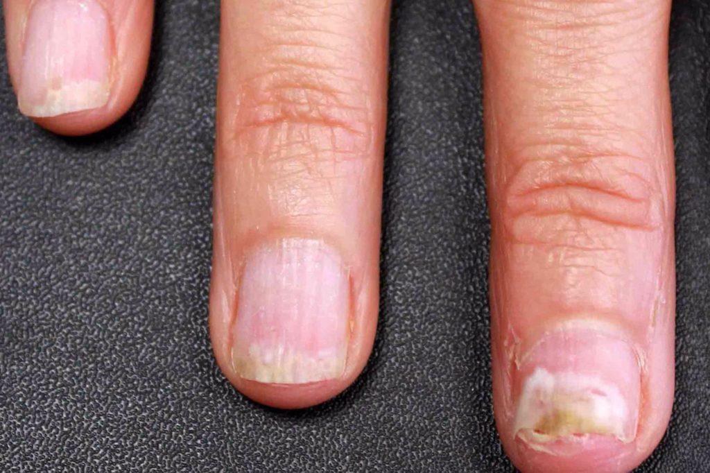Грибок на пальчике у ногтей