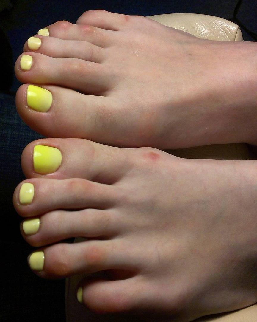 Жёлтый педикюр