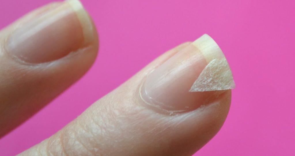 Как восстановить ногти? Советы на все случаи!