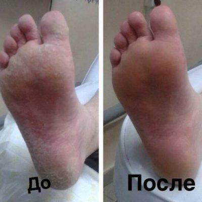 Педикюр мужской: до и после