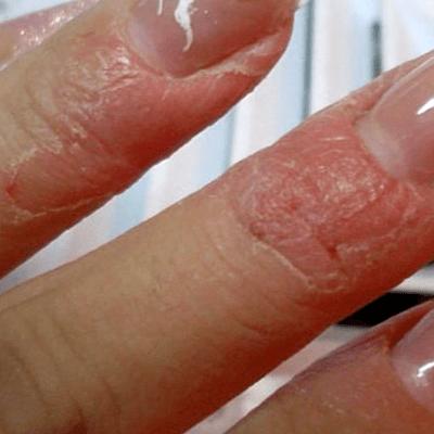 Аллергия на гель лак экзема