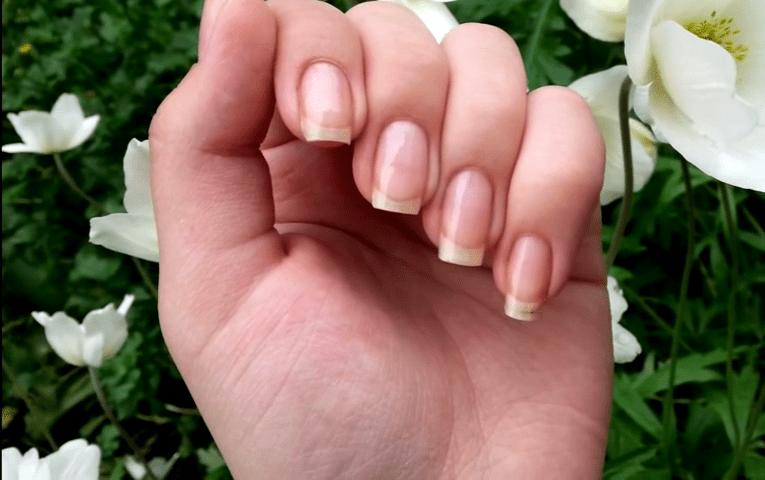 Пожелтевшие ногти на руках