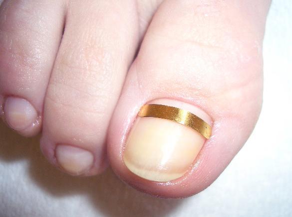 Коррекция вросшего ногтя пластиной Голдшпанга