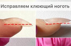 Клюющие ногти, как с ними работать?