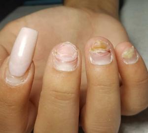 Ваши ногти не восстановятся после того, как вы содрали гель-лак. Развеиваю мифы по восстановлению ногтей