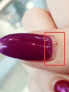 Трещина на большом пальце: как не допустить такого, когда делаешь сама себе маникюр