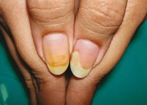 Болезни ногтей из-за перенашивания гель-лака