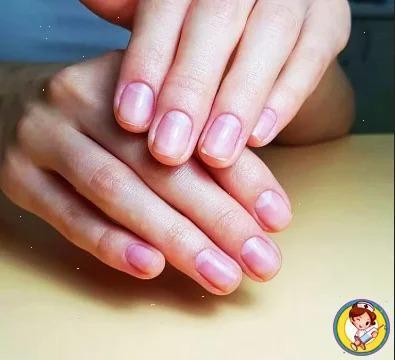 Как с помощью состояния ногтей на руках, можно понять какие органы в организме подвержены заболеваниям