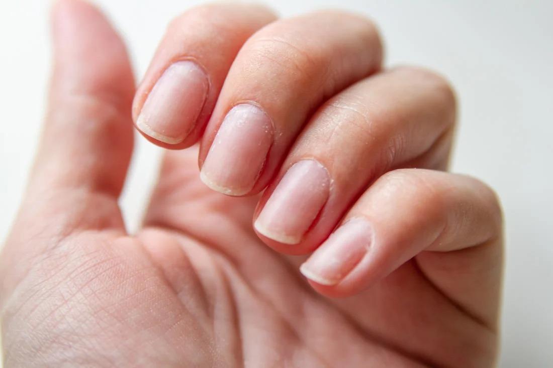 Как снять гель-лак дома и не испортить ногти