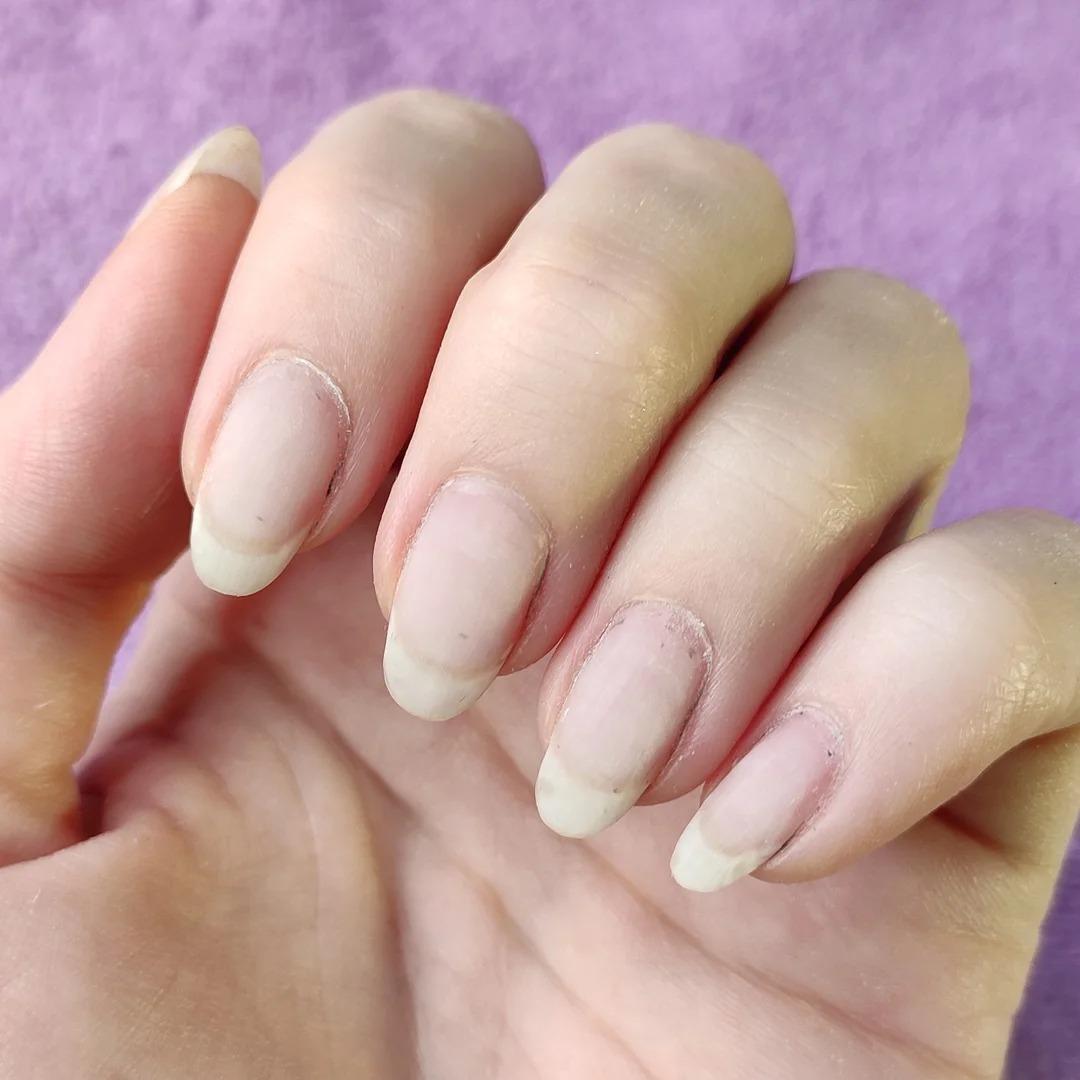 """""""4 года под гель-лаком"""" Сняла покрытие, показываю ногти."""