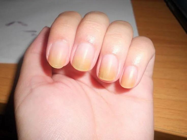 Потемнения на ногтях после наращивания и гель-лака – это не грязь, а инфекция