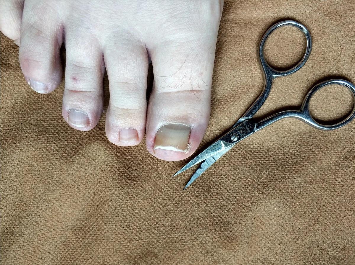 Как я легко отстригаю вросшиеся утолщенные жесткие ногти, которые еще и крошатся при стрижке