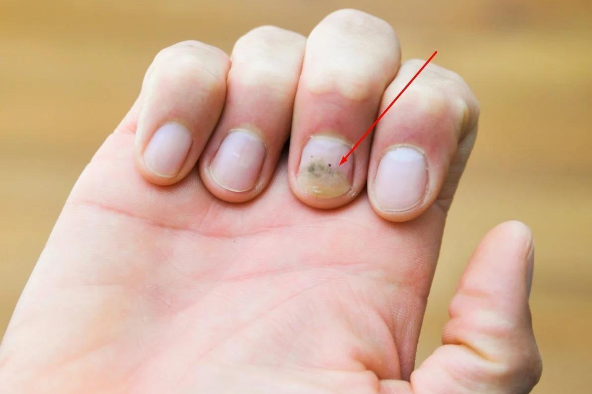 Почему я никогда не нанесу на ногти шеллак. И вам не советую