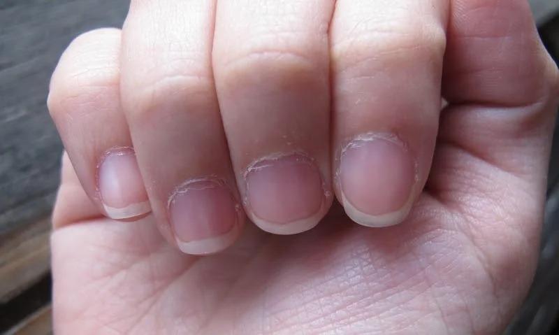 Маникюр, который омолодит руки – рекомендации от мастера и фото примеров